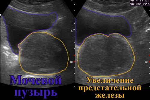 УЗИ предстательной железы и мочевого пузыря